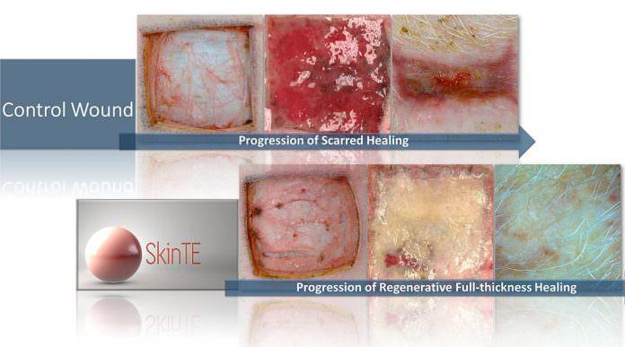 Yara İzi Olan Ciltleri Onaracak Yeni Teknoloji: SkinTE!